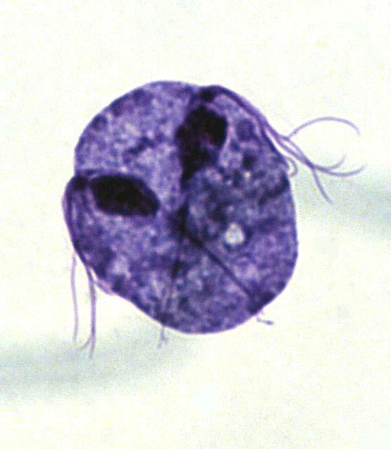 A Trichomonas él a végbélben